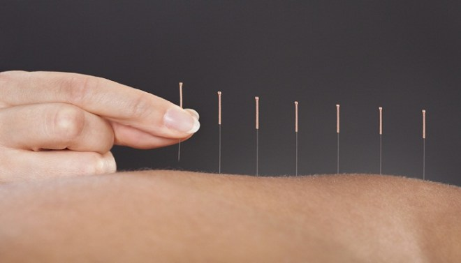 acupuncture-Netmarkers