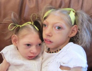 children with microcephaly- Netmarkers