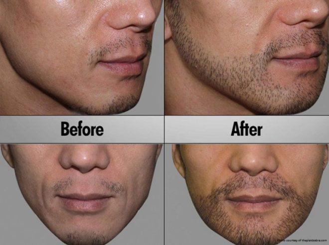 Image Led Use Eucalyptus Oil For Your Beard 4