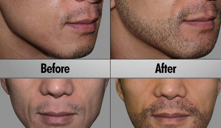 home remedies to grow beards-Netmarkers