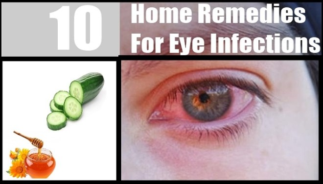 easy-home-remedies-for-eye-infection-netmarkers