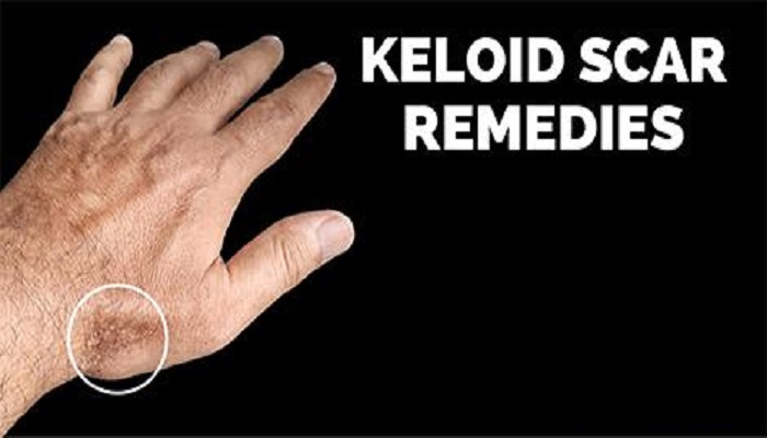 keloids-and-scars-netmarkers