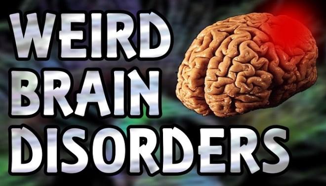 bizarre-disorders-of-brain-netmarkers