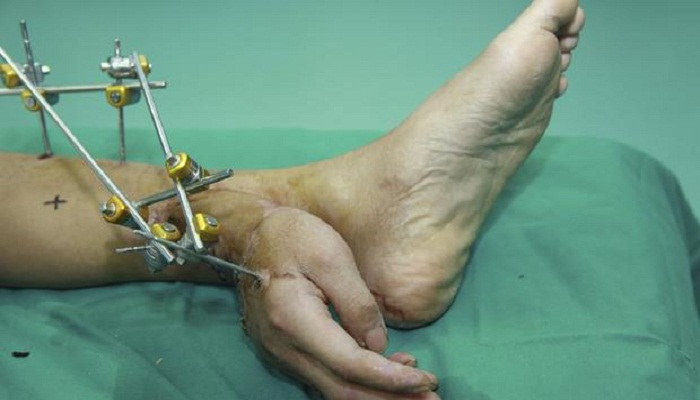 severed-hand-implanted-to-leg-before-reattachment-netmarkers
