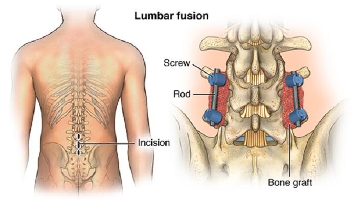 surgery-Netmarkers