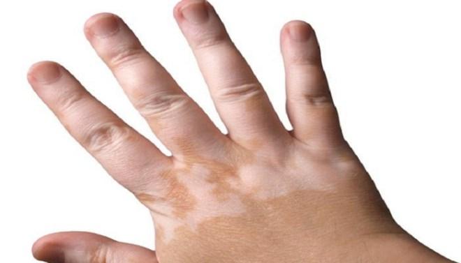vitiligo-netmarkers