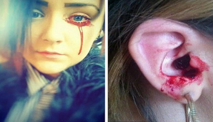girl bleeds from eyes and ears-Netmarkers