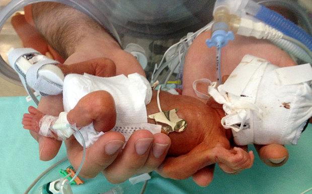 Bebe premature sauve 1