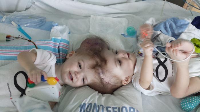 jumeaux-siamois-separes-13-mois
