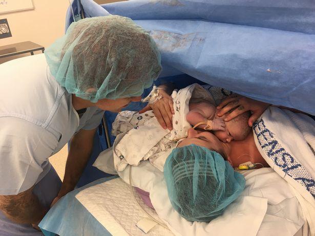 photo naissance cesarienne incroyable 3