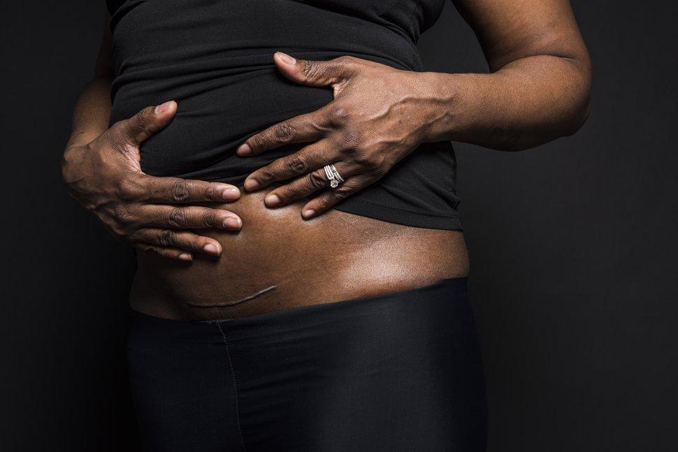 photo-femme-cicatrice-cesarienne-3