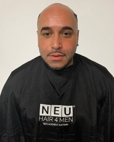 NEU HAIR 4 MEN BEFORE IMAGE 4