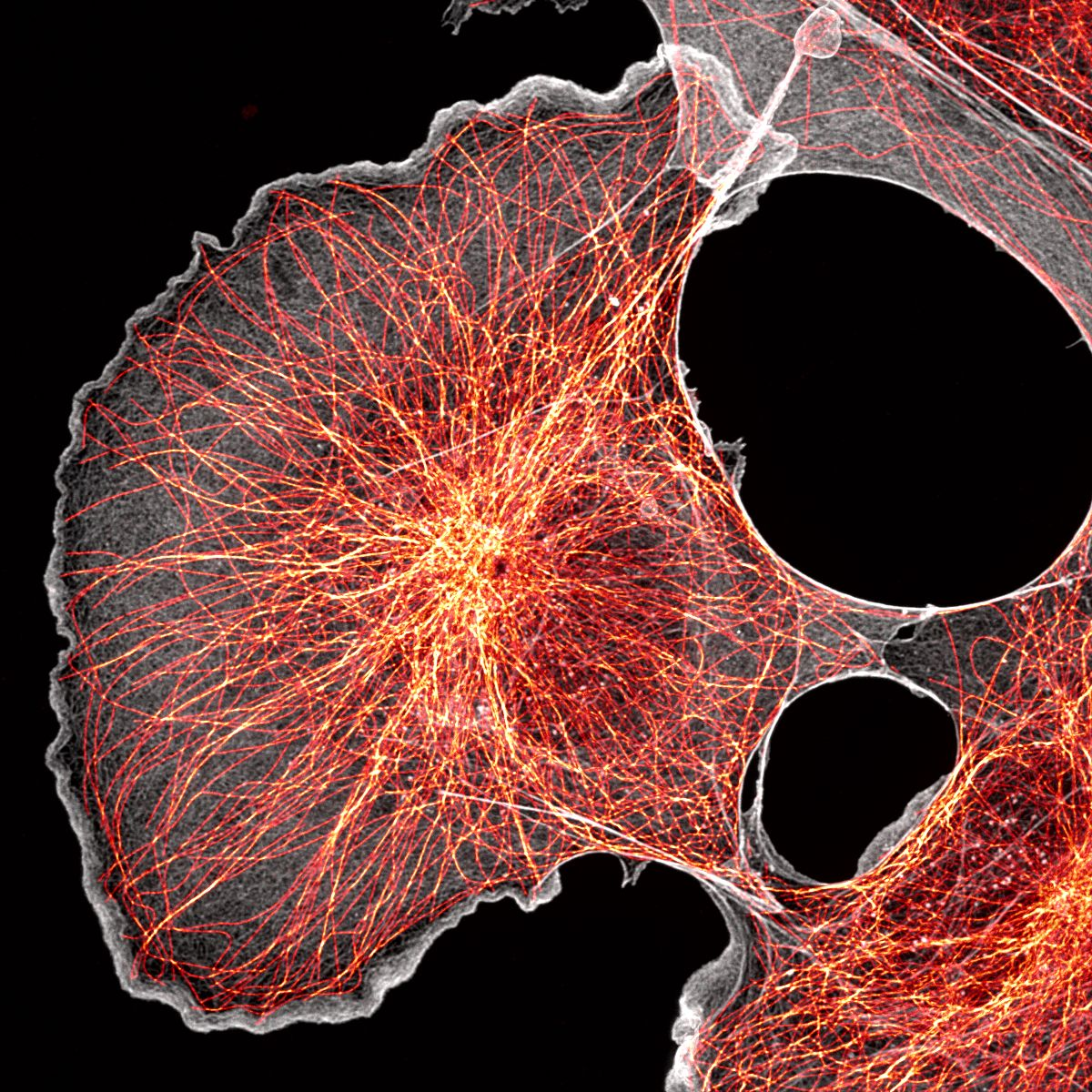 Super-resolution spinning disk image of COS cells labeled for actin (grey) and microtubules (orange)