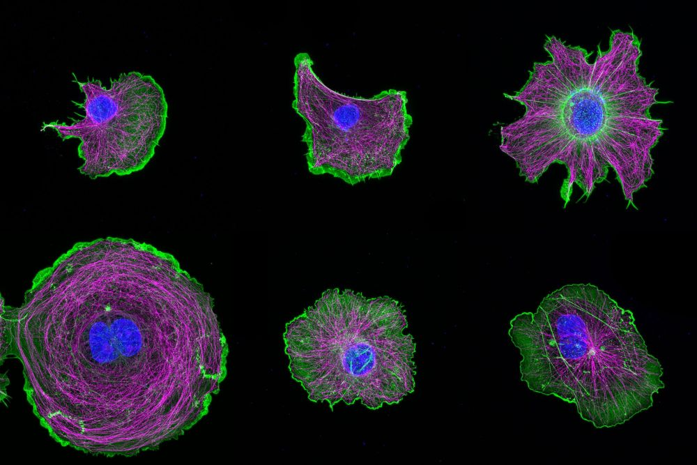 Gallery of COS cells labeled for actin (green), microtubules (magenta) and nucleus (blue)