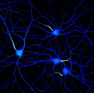 Hippocampal neurons labeled for map2 (blue), ßIV-spectrin (red) and neurofascin (green)