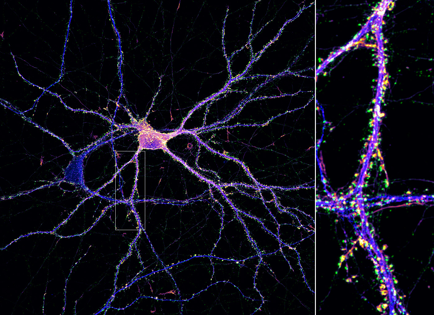 Synapses (green) on an hippocampal neuron (map2, blue; actin, fire).