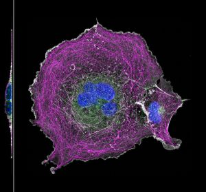 COS cell labeled for microtubules (magenta), actin (grey), clathrin (green) and nucleus (blue)