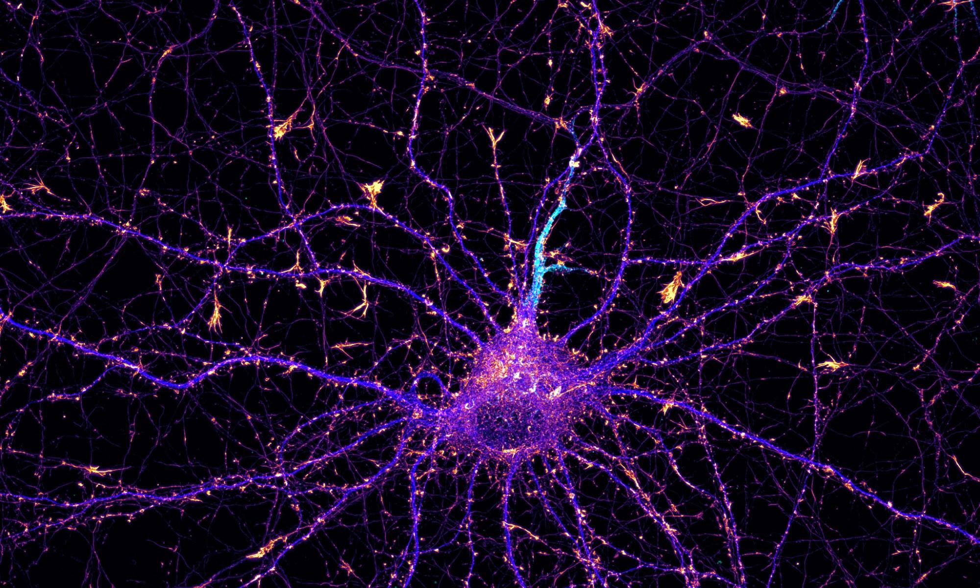 Hippocampal neuron labeled for actin (fire), map2 (blue) and neurofascin (cyan)