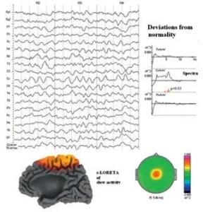 Beispiel einer QEEG Aufnahme mit Brainmap und ERP Analyse