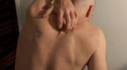 El tratamiento del prurito, no es tan sencillo como pensabas.