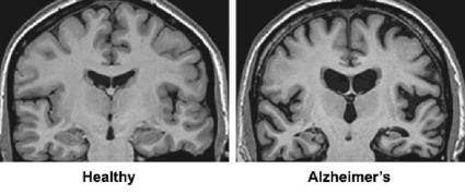 Rezonans magnetyczny - skan, choroba Alzheimera