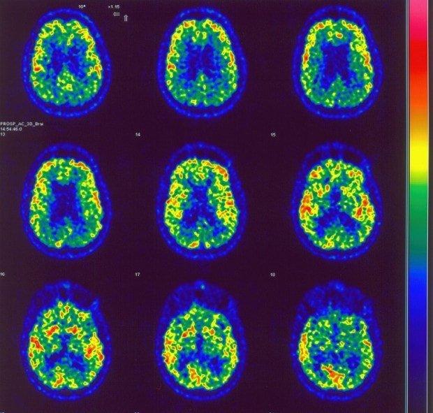 tratamiento de zolpidem en pacientes en estado de mínima conciencia
