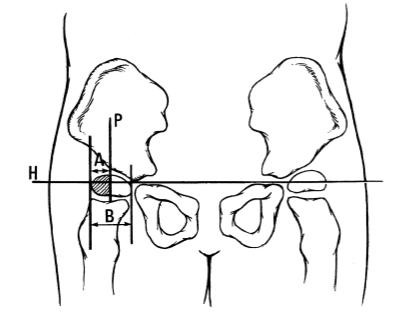 Imagen que ayuda a determinar el porcentaje de migración de desplazamiento de cadera en niños con daño cerebral