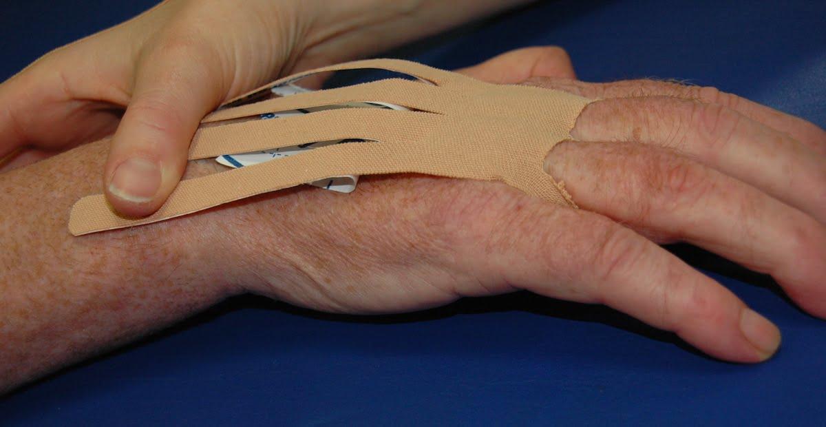 Aplicación del vendaje neuromuscular en manos paréticas