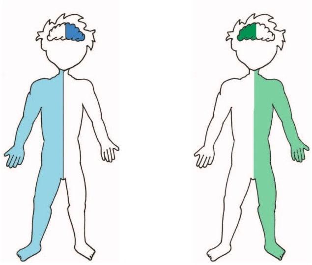 principales déficits que aparecen cuando acontece un ictus en el hemisferio cerebral derecho o izquierdo