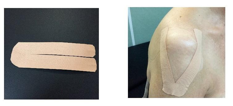 vendaje para tonificar el deltoides