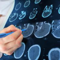 اختلالات روانی که با مرگ زودرس همراهند/چگونه اختلال روان منجر به بیماری جسم می شود؟