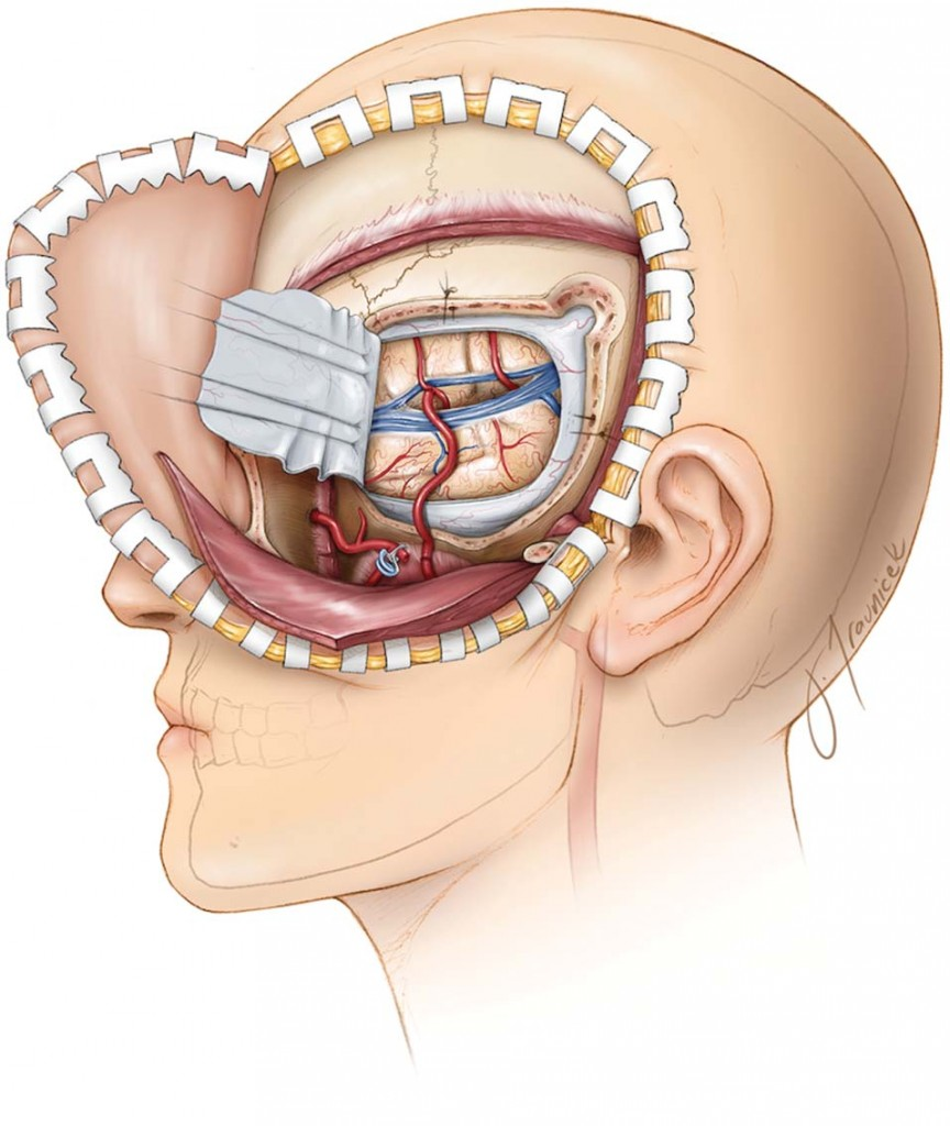 extracranial intracranial bypass surgery impact of caseload 2) awad ia, spetzler rf: extracranial-intracranial bypass surgery: a critical  analysis in  impact of hospital caseload and elective admission on outcomes  after.
