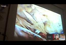 """Slaven Gojkovic MS 3, on """"Kawase Approach and Temporal Approaches"""" in Neurosurgery"""