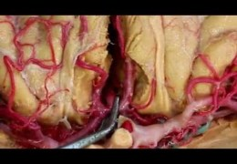 Victor Hugo Perez Perez MD with New Dissection of Brain Arteries