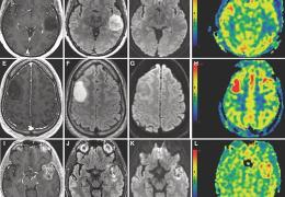 Comprehensive Review of Current Clinical Brain Tumor Imaging