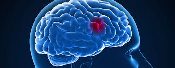 Milestone study could impact standard guidelines for stroke treatment