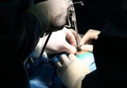 Neurosurgery Evaluates Use of Checklists