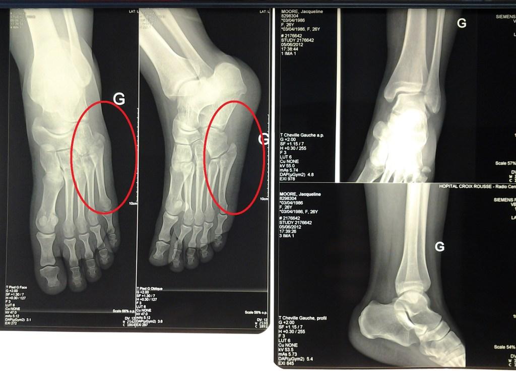 Foot 2