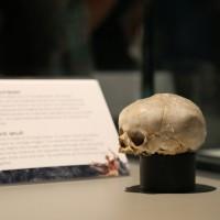 02-07-2014-muenchen-ausstellung-koerperwelten-hagen-poeppel-new-facts-eu (12)