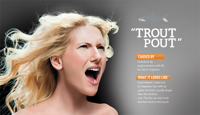 When Beauty Backfires: Trout Pout featured image