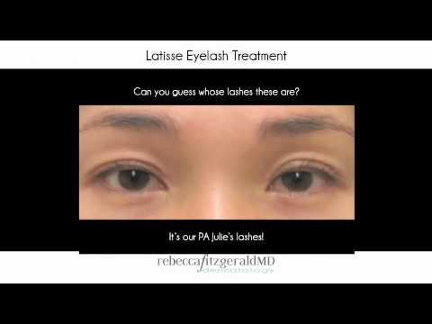 Dr. Fitzgerald – Chemical Peels, Latisse And Specials Before And After Picture Slideshow featured image