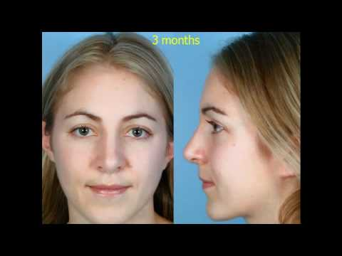 Dr. David Kim – Rhinoplasty – The Structural Approach To Rhinoplasty – Part 5 featured image