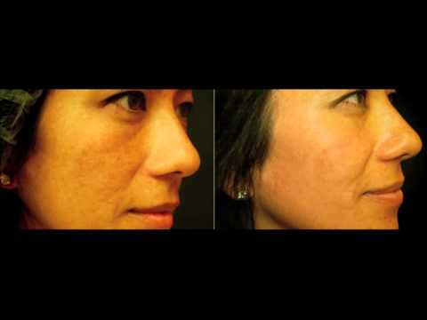 Dr. Reichel – Why Ethnicity Matters For Skin Treatments featured image