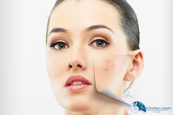 Chemical peel benefits Image - FAC