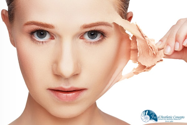 What Are Chemical Peels Blemished Skin Cure FAC