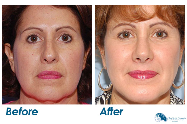 Facelift Before and After Front Face