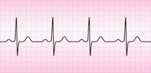 panic attack vs heart attack normal ECG