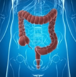 Rectal Cancer. German New Medicine.
