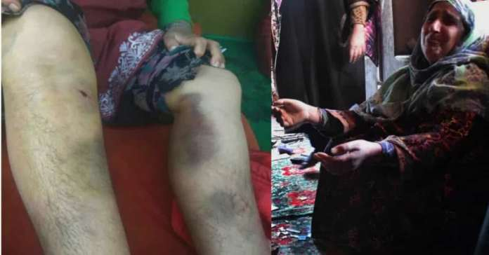 Shoved gun barrels in mouths tied civilians to tree A ransacked Budgam village