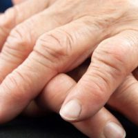 Natural Remedies for Rheumatoid Arthritis Ease The Pain